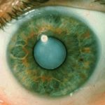 Cataract photo