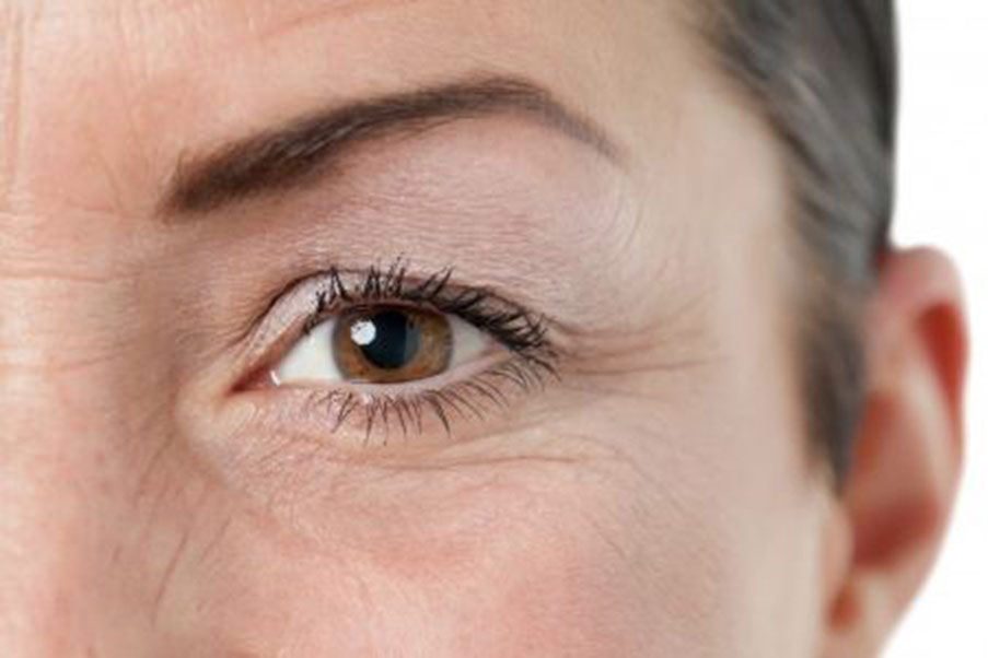 Signs and Symptoms - Ptosis
