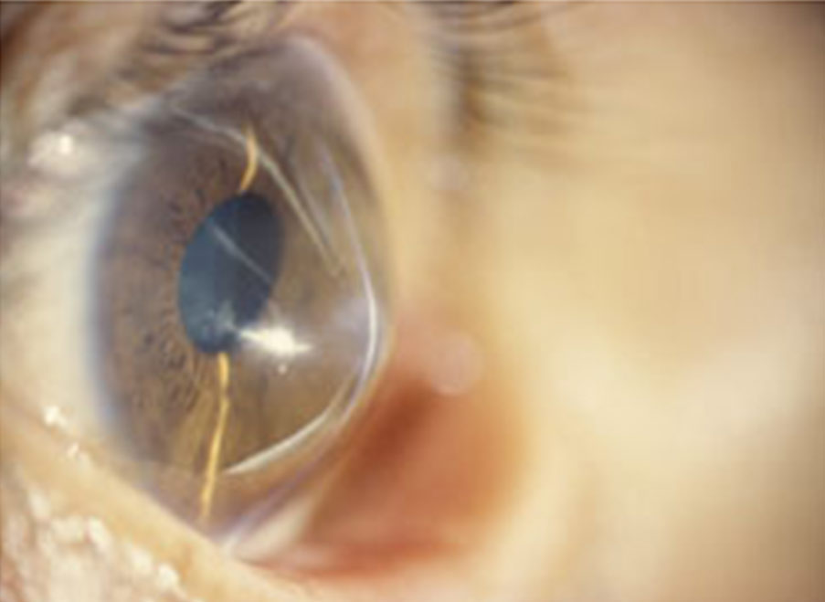 What Causes Keratoconus