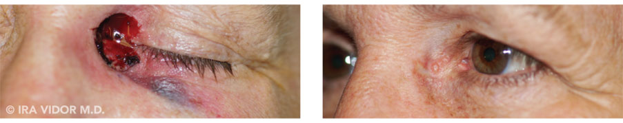 Male eyes, before and after Blocked Tear Ducts treatment, oblique view, patient 2