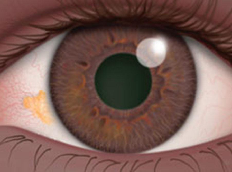 Benign Eye Growths:Pterygia