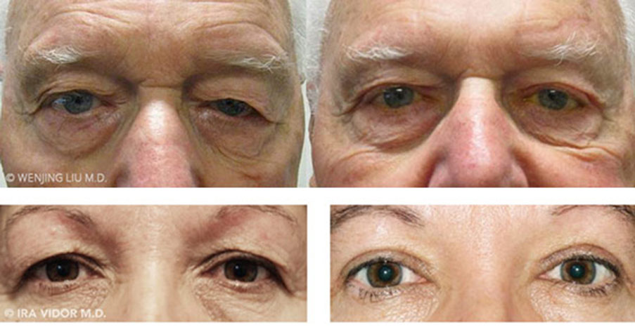 Male eyes, before and after Eyebrow Lift treatment, front view, patient 1