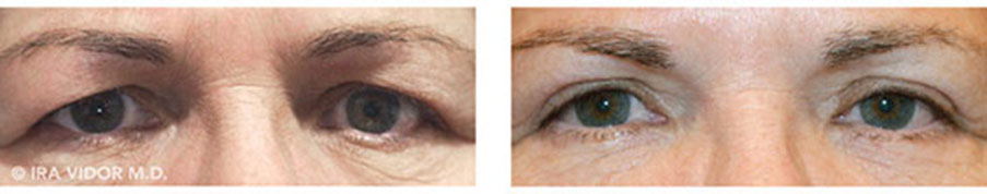 Male eyes, before and after Blocked Tear Ducts treatment, front view, patient 2