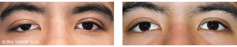 Male eyes, before and after Dry Eye treatment, front view, patient 3