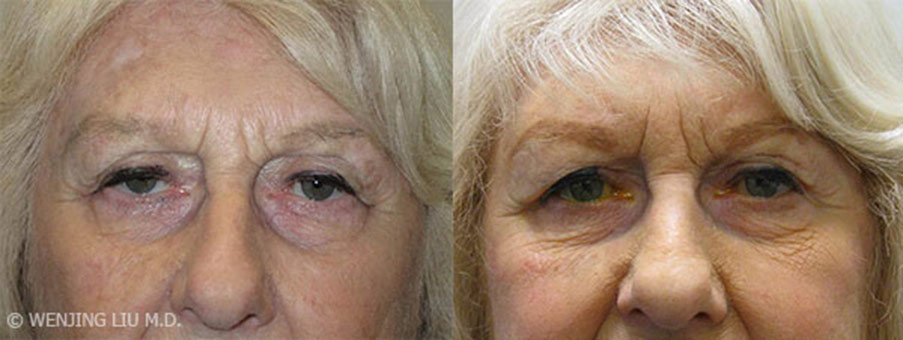 Woman's face, before and after Ptosis treatment, front view