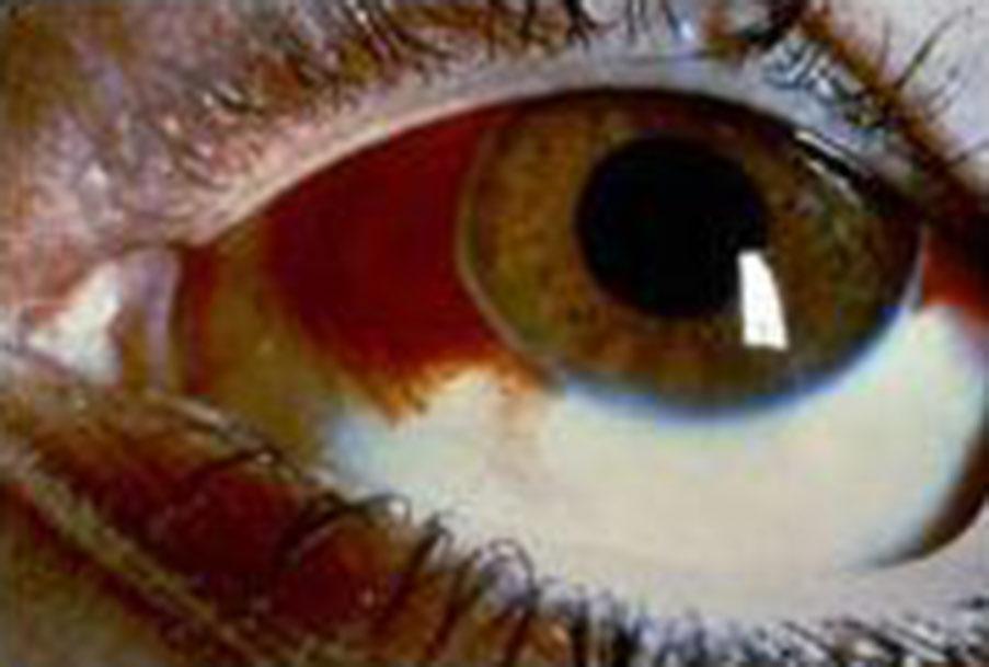 Subconjunctival Hemorrhage: Blood in the Eye