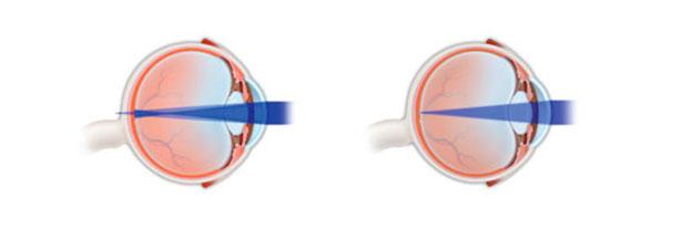Eyes, vision schema with astigmatism