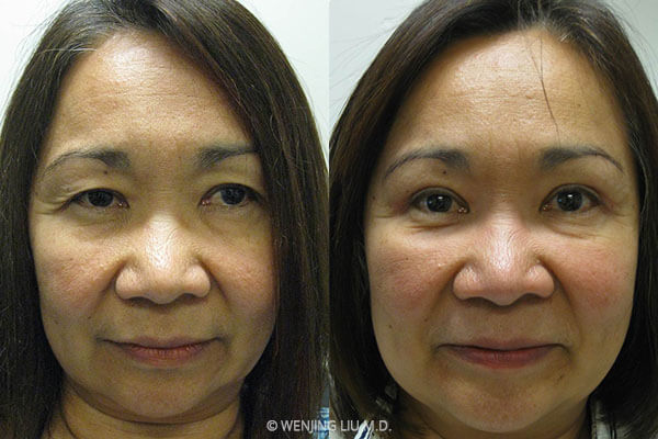 Woman's eyes, before and after Cosmetic Eyelid Surgery treatment, front view, patient 2