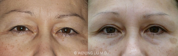 Woman's face, before and after Improving Droopy Eyelids with Blepharoplasty treatment, front view, patient 1