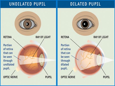 Diabetes - Undilated pupil / Dilated pupil