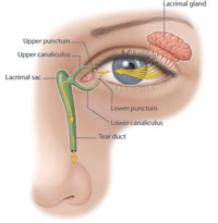 Symptoms of a Blocked Tear Duct