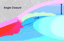 Glaucoma care - Angle Closure
